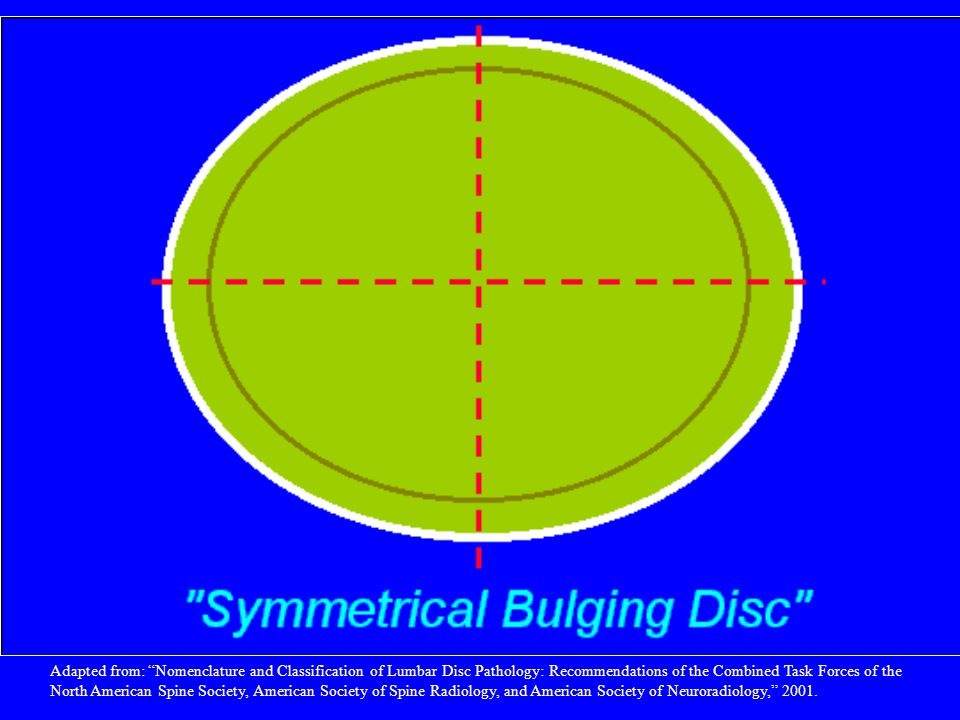 Symmetrical presence (or apparent presence) of disc tissue circumferentially (50-100%) beyond the edges of the ring apophyses may be described as a bulging disc or bulging appearance , and is not considered a form of herniation. Furthermore, bulging is a descriptive term for the shape of the disc contour and not a diagnostic category.