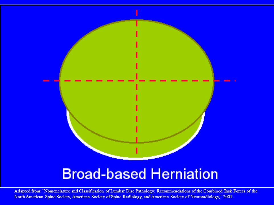 By convention, a broad-based herniation involves between 25% and 50% (90-180) of the disc circumference.