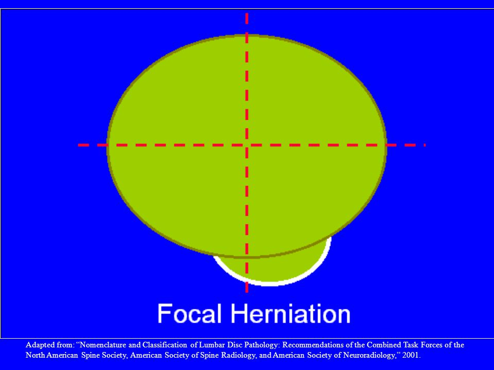 By convention, a focal herniation involves less than 25% (90) of the disc circumference.