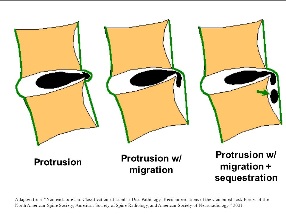 Protrusion w/ migration + sequestration Protrusion w/ migration