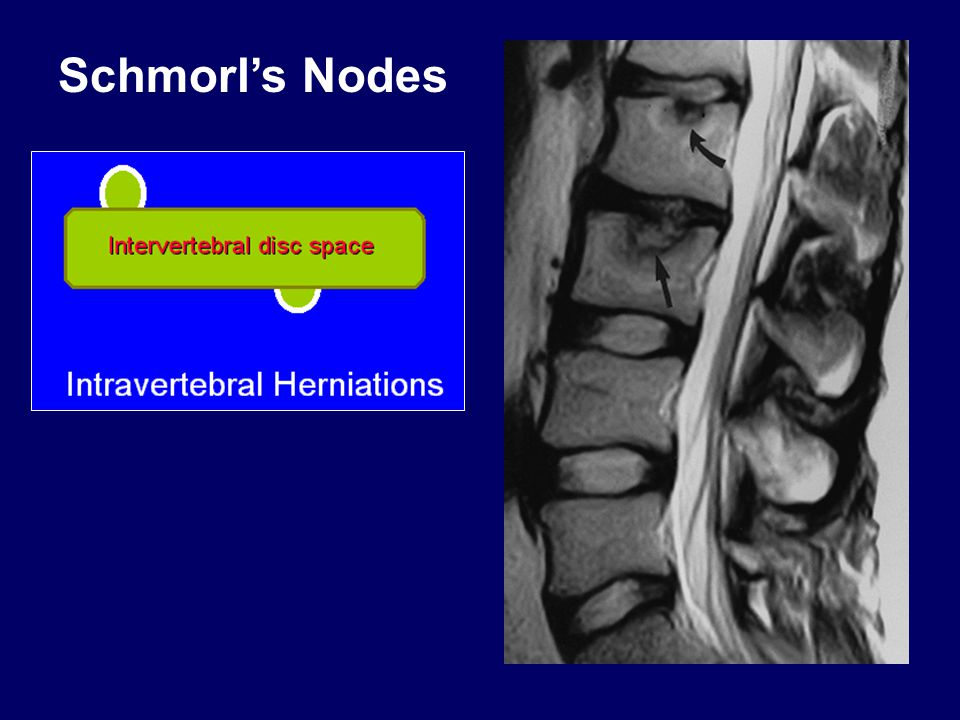 Schmorl's Nodes