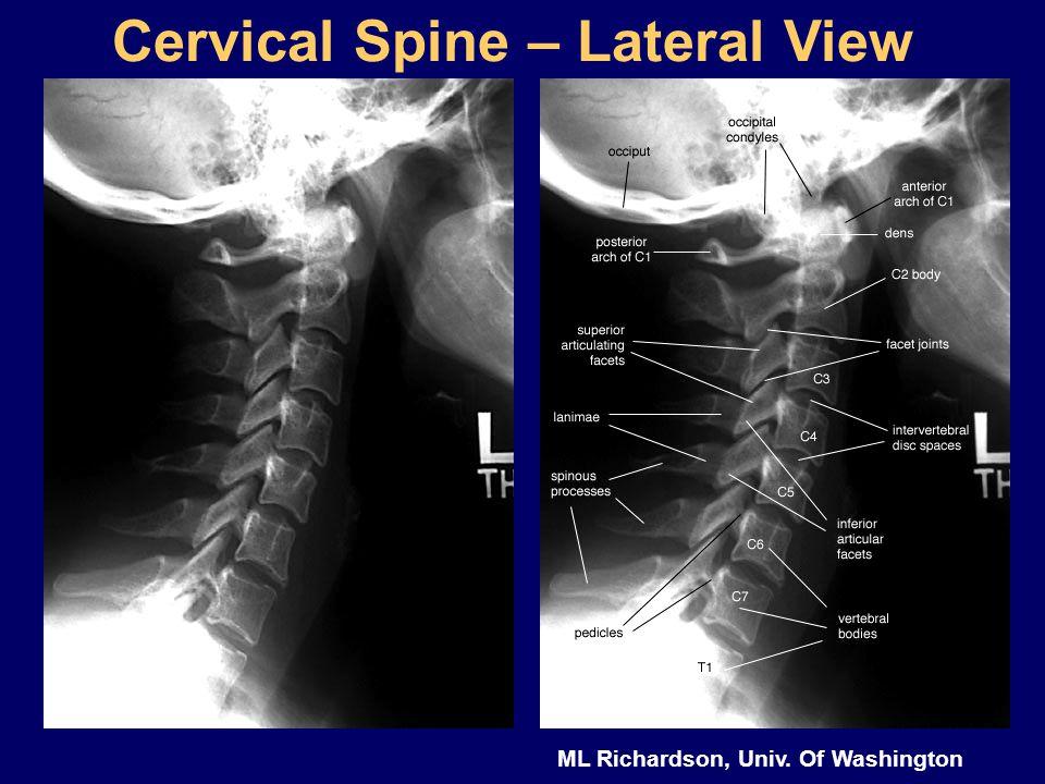 Cervical spine mri anatomy
