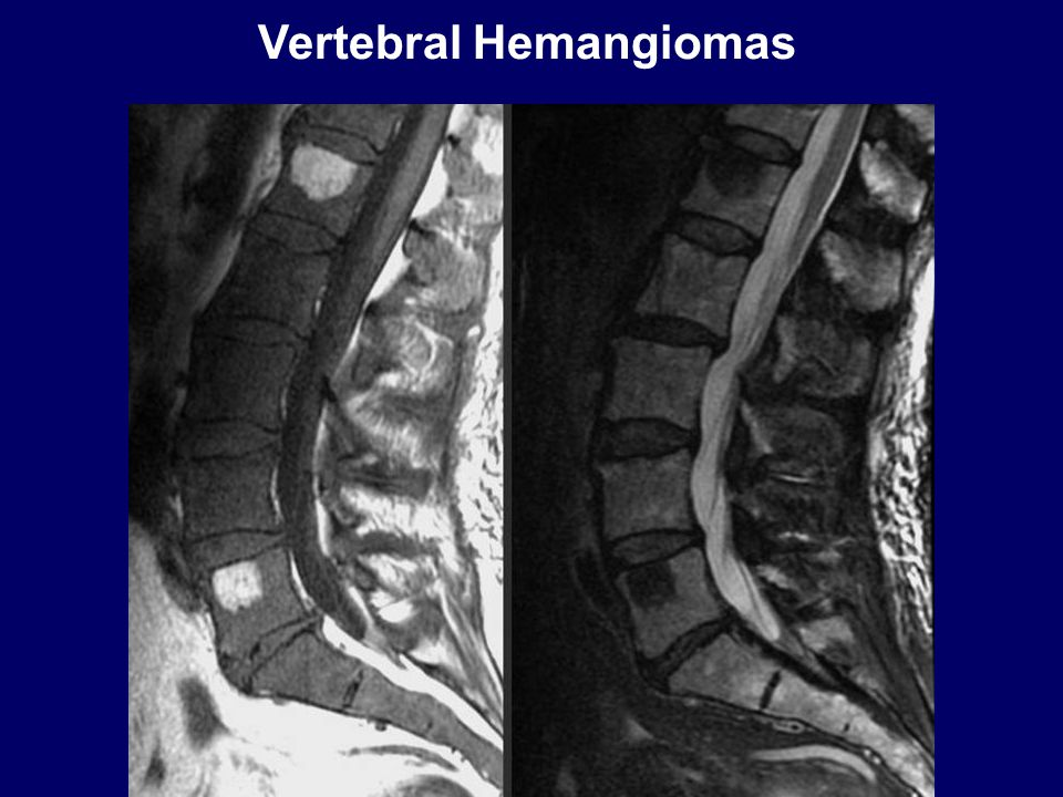 Vertebral Hemangiomas