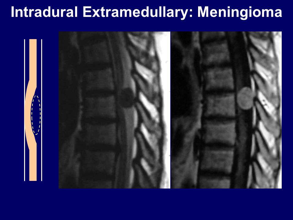Intradural Extramedullary: Meningioma
