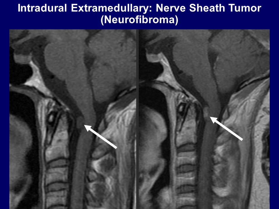 Intradural Extramedullary: Nerve Sheath Tumor