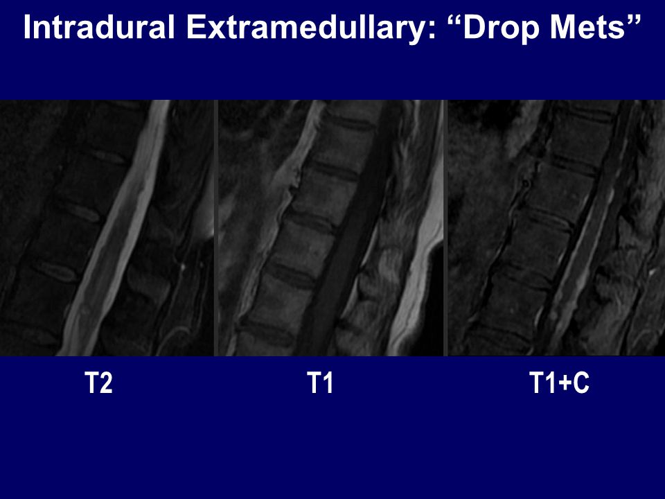 Intradural Extramedullary: Drop Mets