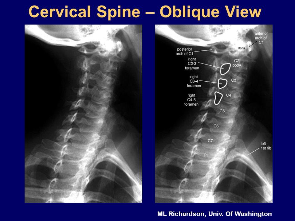 Cervical Spine – Oblique View