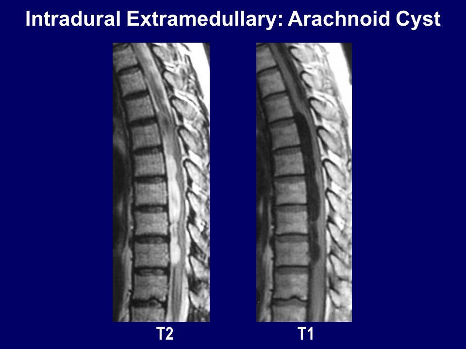 Intradural Extramedullary: Arachnoid Cyst