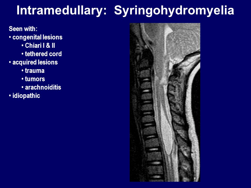 Intramedullary: Syringohydromyelia