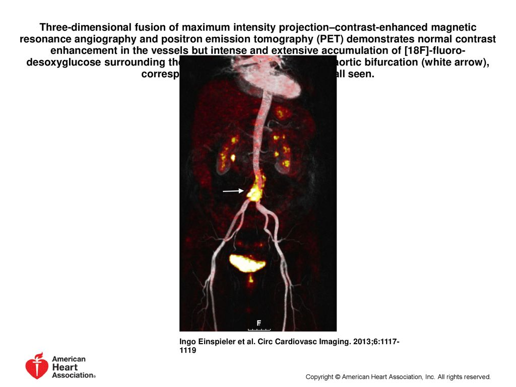 Three-dimensional fusion of maximum intensity projection–contrast-enhanced magnetic resonance angiography and positron emission tomography (PET) demonstrates normal contrast enhancement in the vessels but intense and extensive accumulation of [18F]-fluoro-desoxyglucose surrounding the infrarenal aorta including the aortic bifurcation (white arrow), corresponding to the inflamed aortic wall seen.