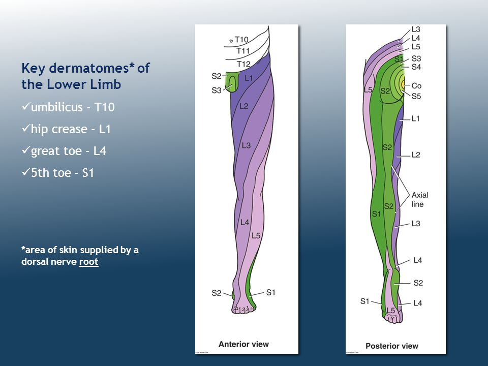 Key dermatomes* of the Lower Limb