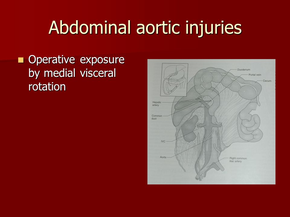Abdominal aortic injuries