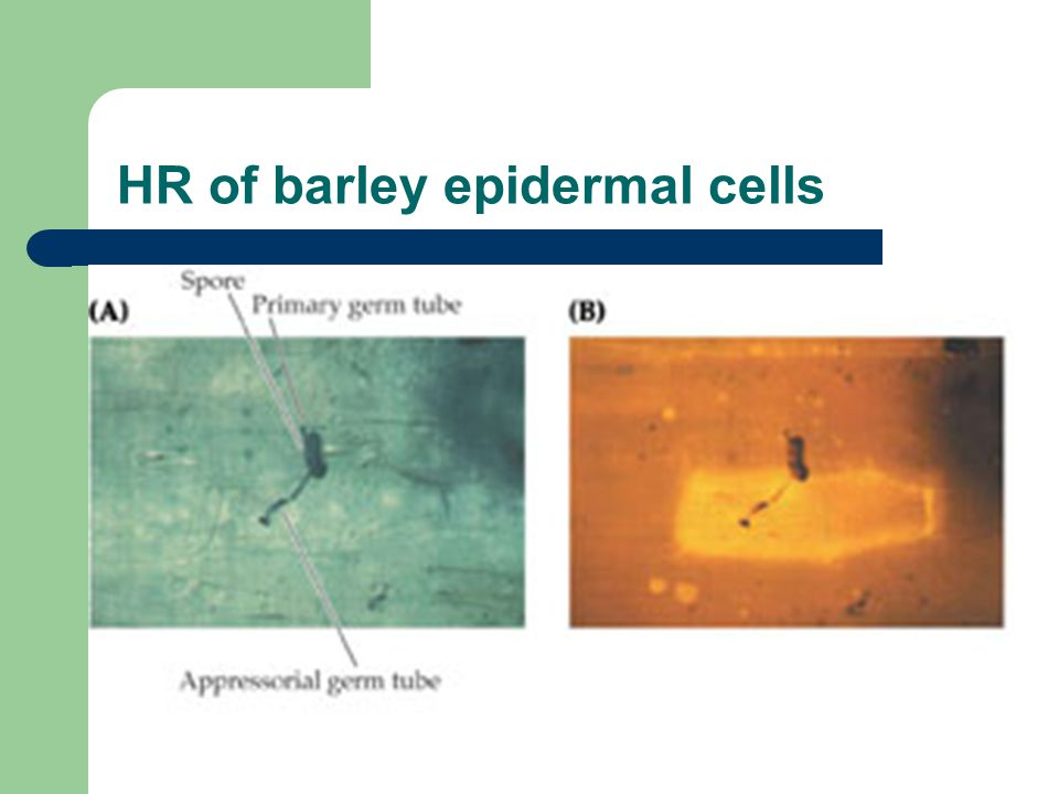 HR of barley epidermal cells