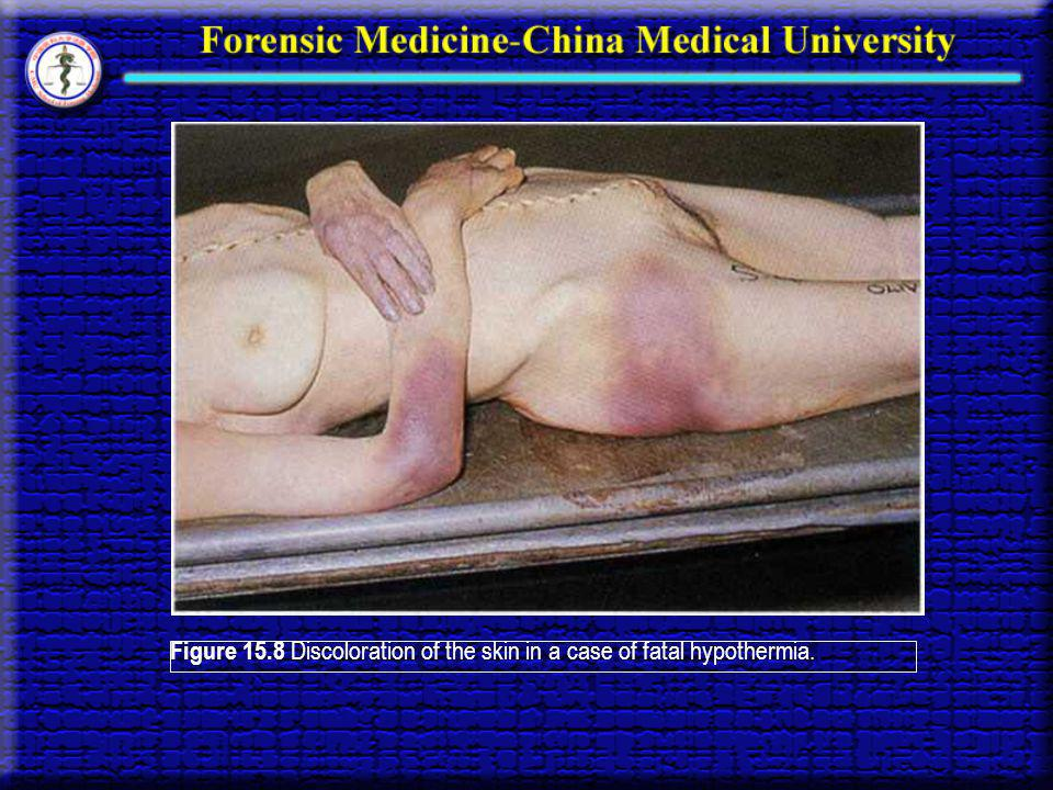 Figure 15.8 Discoloration of the skin in a case of fatal hypothermia.