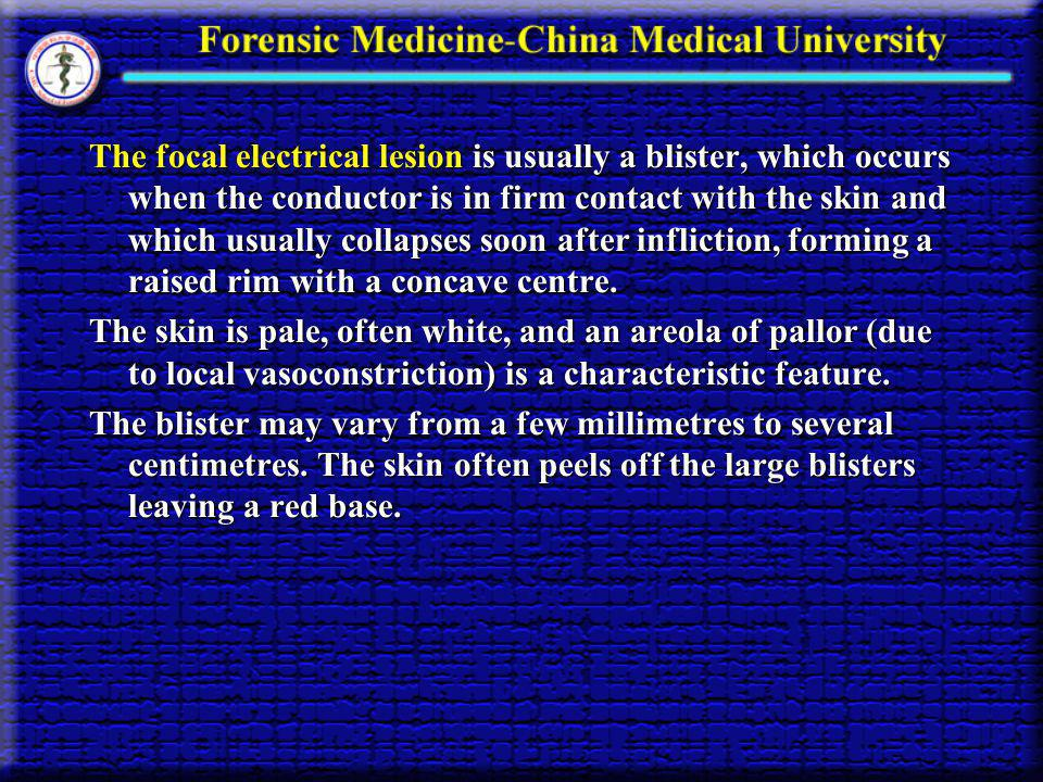 The focal electrical lesion is usually a blister, which occurs when the conductor is in firm contact with the skin and which usually collapses soon after infliction, forming a raised rim with a concave centre.