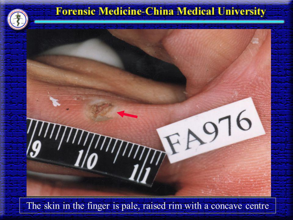 The skin in the finger is pale, raised rim with a concave centre
