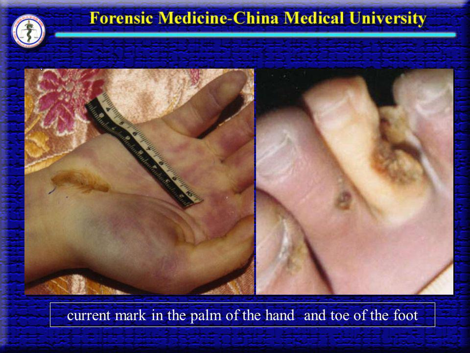 current mark in the palm of the hand and toe of the foot
