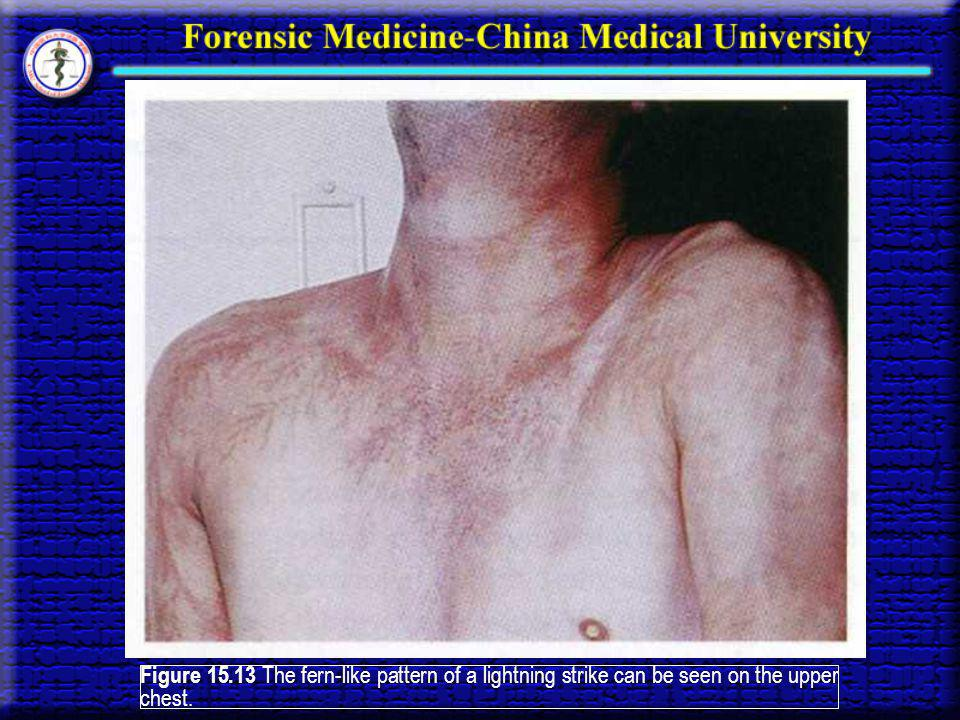 Figure 15.13 The fern-like pattern of a lightning strike can be seen on the upper chest.