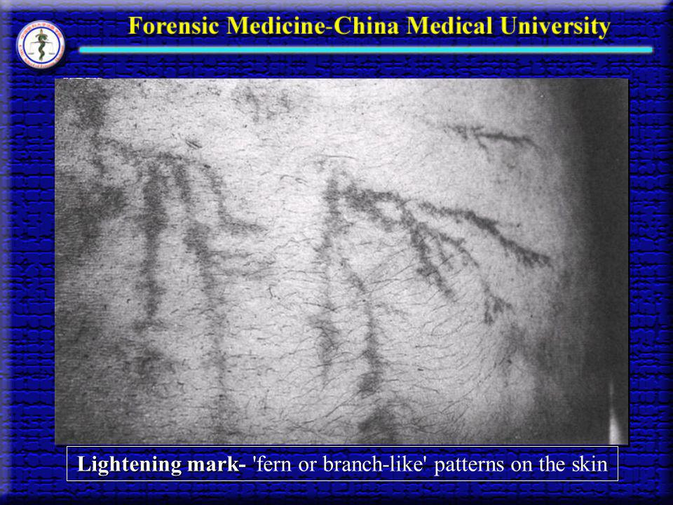 Lightening mark- fern or branch-like patterns on the skin