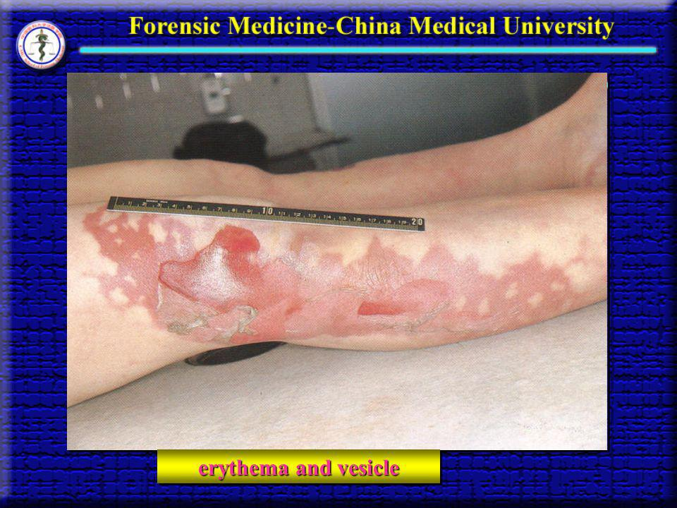 erythema and vesicle