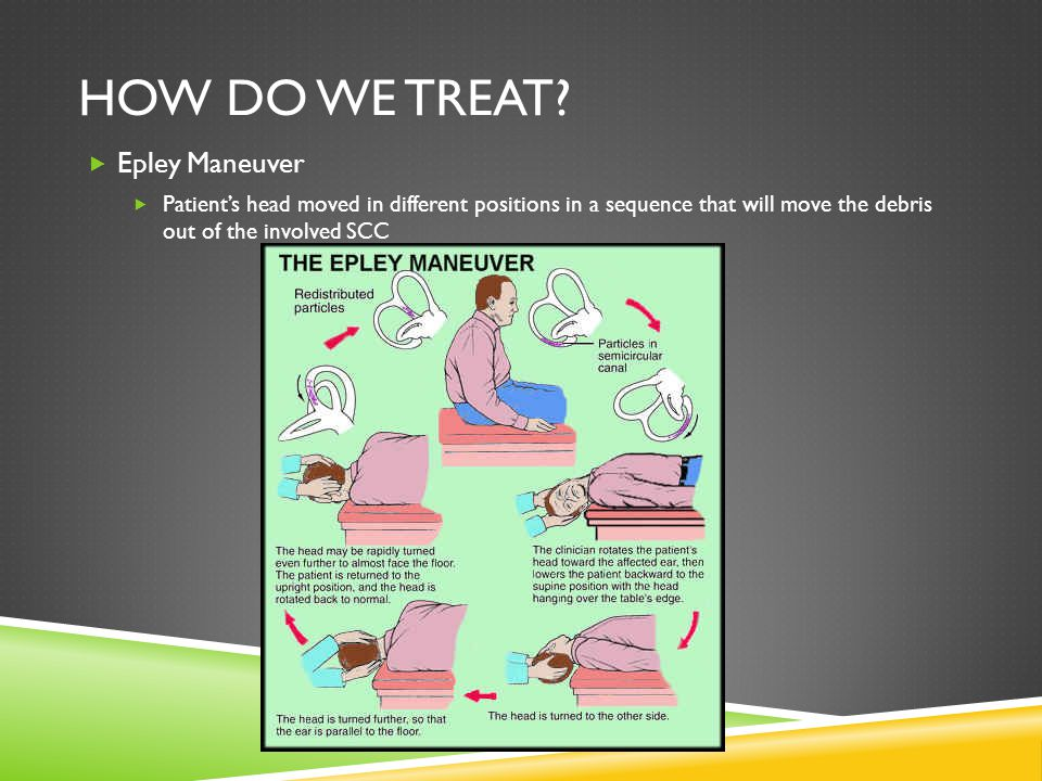 How do we treat Epley Maneuver