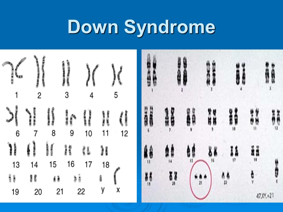 Down Syndrome Karyotype photograph of the entire set of chromosomes. 23 pairs for a total of 46.