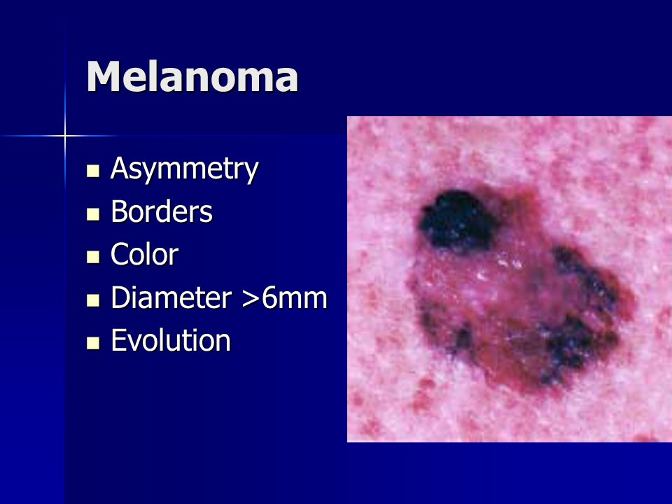 Melanoma Asymmetry Borders Color Diameter >6mm Evolution