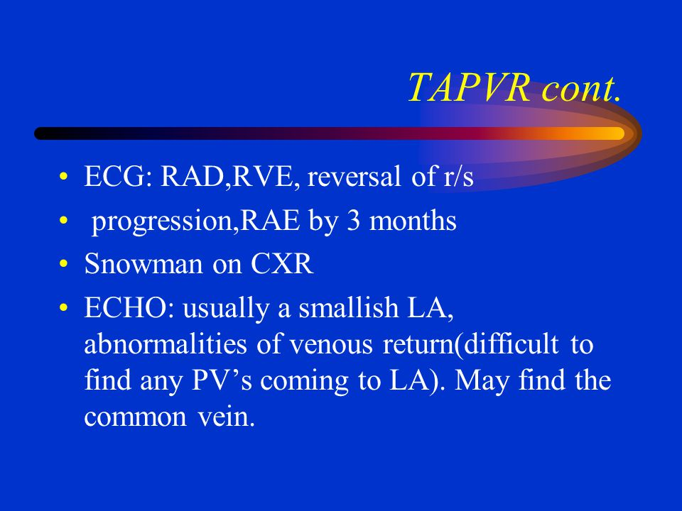 TAPVR cont. ECG: RAD,RVE, reversal of r/s progression,RAE by 3 months