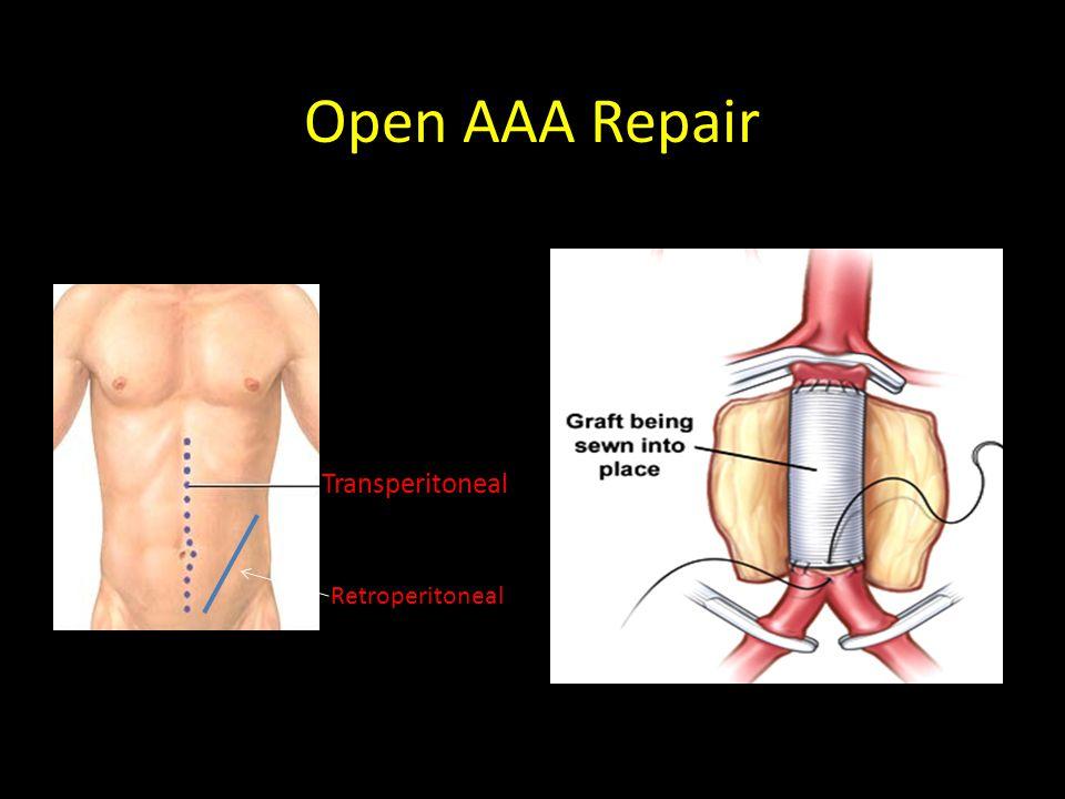 Open AAA Repair Transperitoneal Retroperitoneal