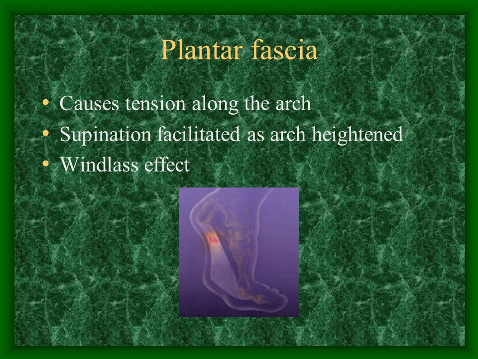 Plantar fascia Causes tension along the arch