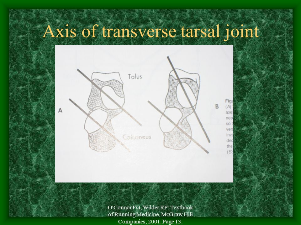 Axis of transverse tarsal joint