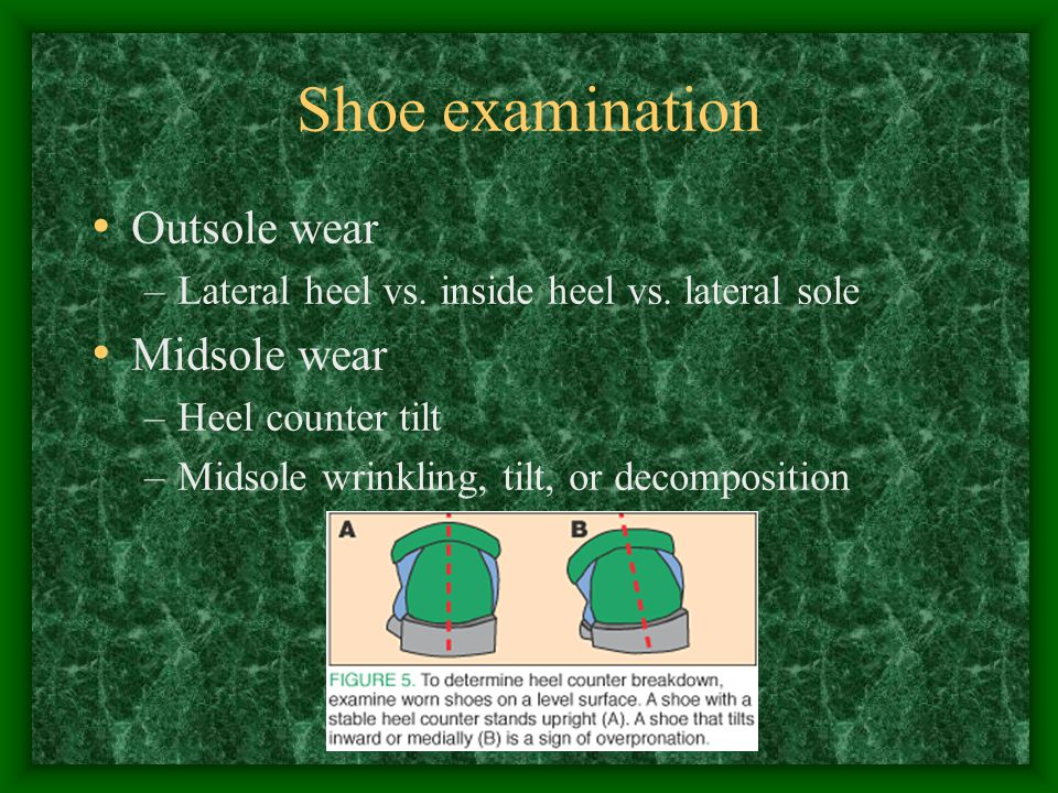 Shoe examination Outsole wear Midsole wear