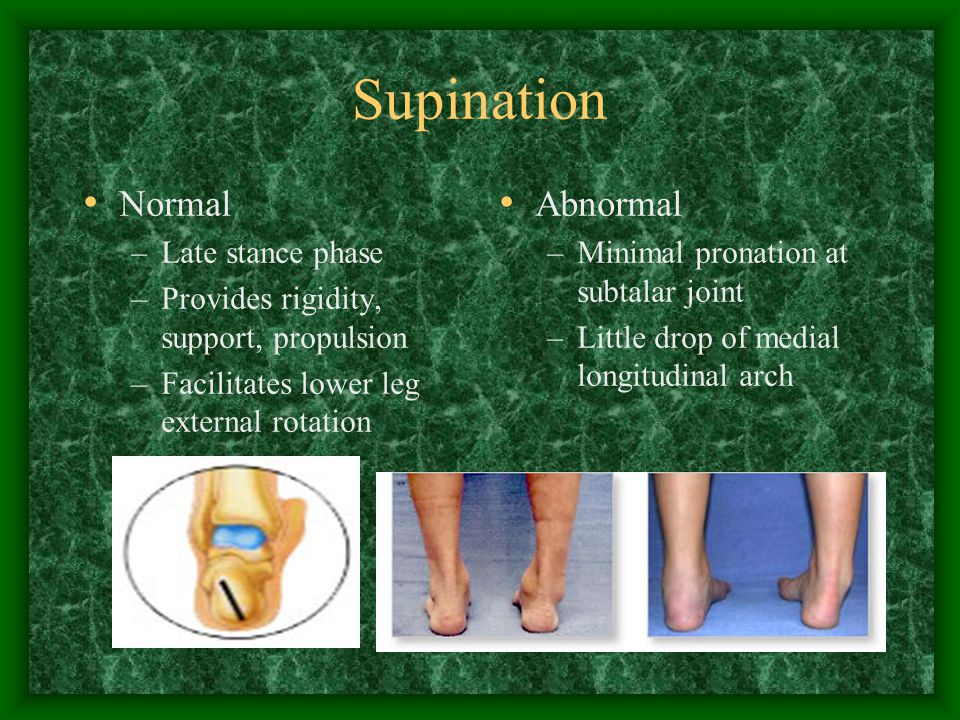 Supination Normal Abnormal Late stance phase