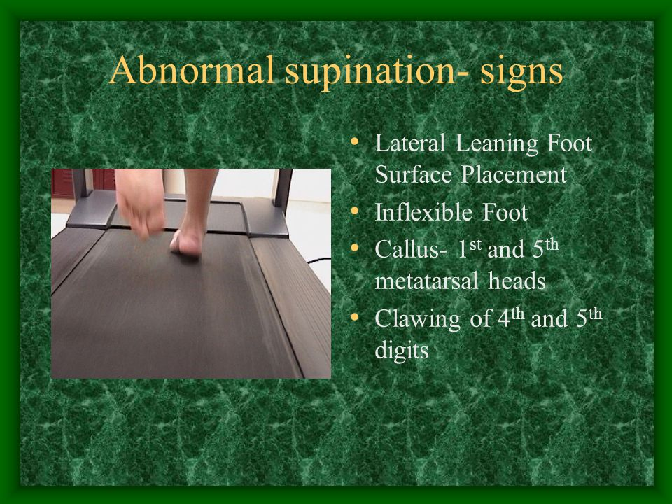 Abnormal supination- signs