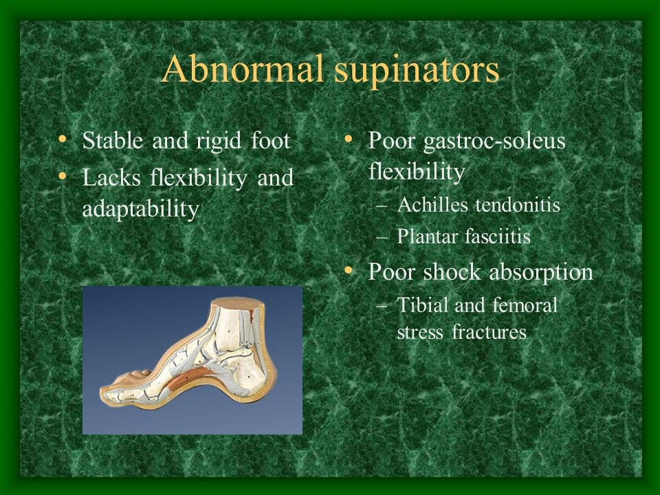 Abnormal supinators Stable and rigid foot