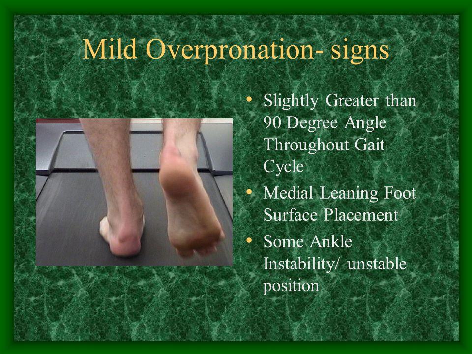 Mild Overpronation- signs