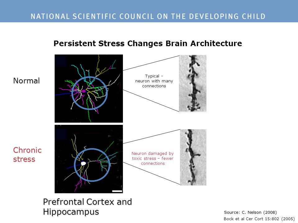 Persistent Stress Changes Brain Architecture