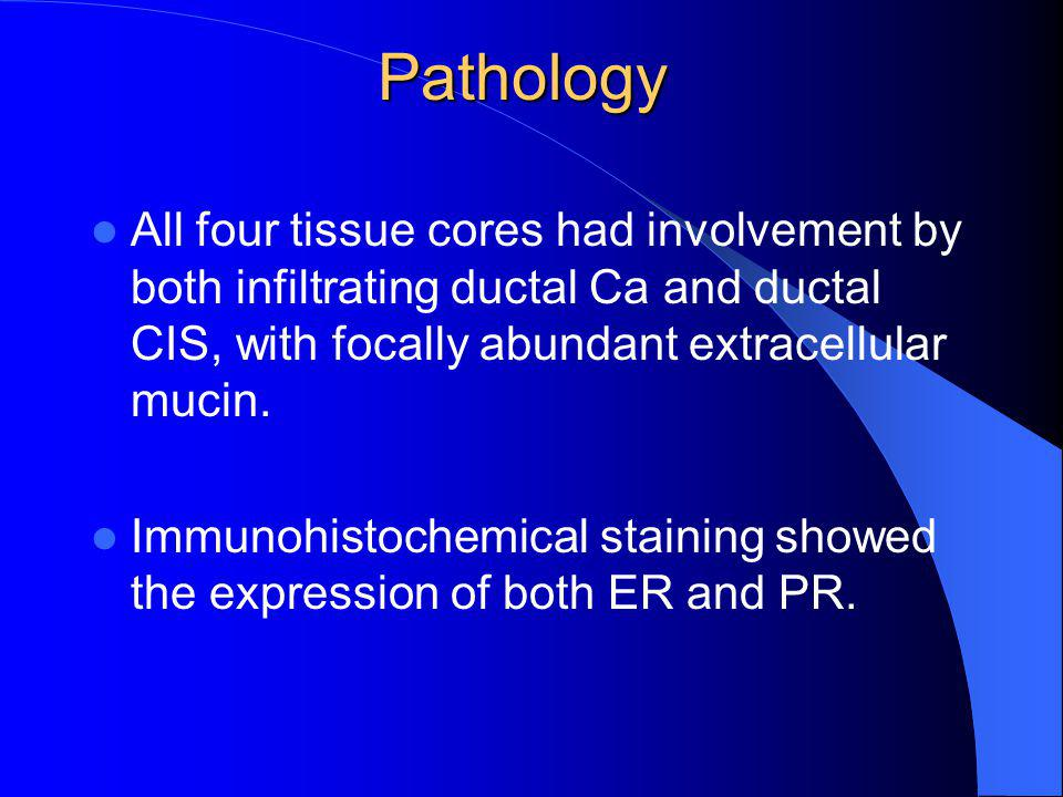 Pathology All four tissue cores had involvement by both infiltrating ductal Ca and ductal CIS, with focally abundant extracellular mucin.