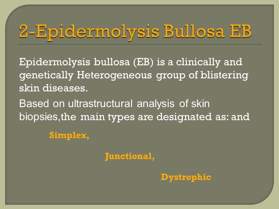 2-Epidermolysis Bullosa EB