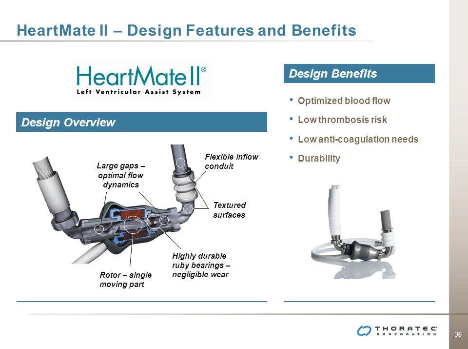 HeartMate II – Design Features and Benefits