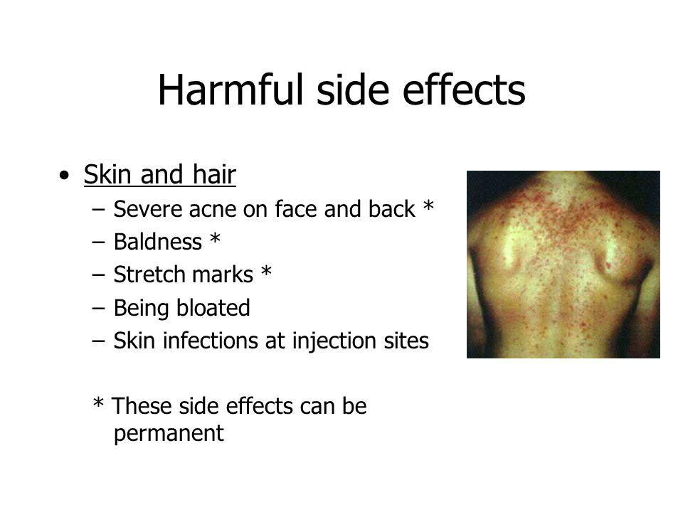 Harmful side effects Skin and hair Severe acne on face and back *