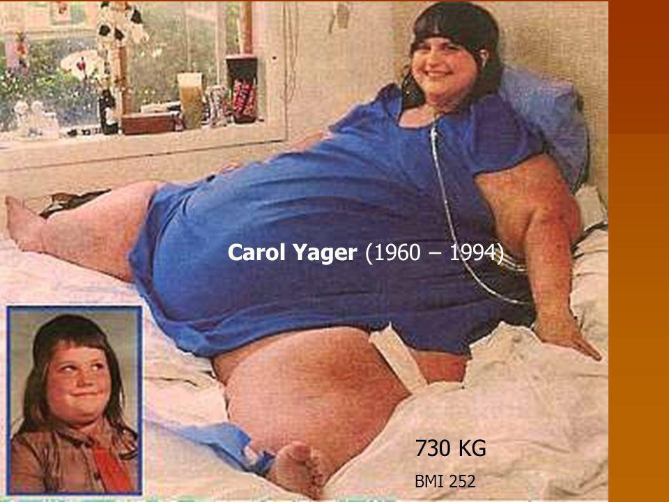 Carol Yager (1960 – 1994) 730 KG BMI 252