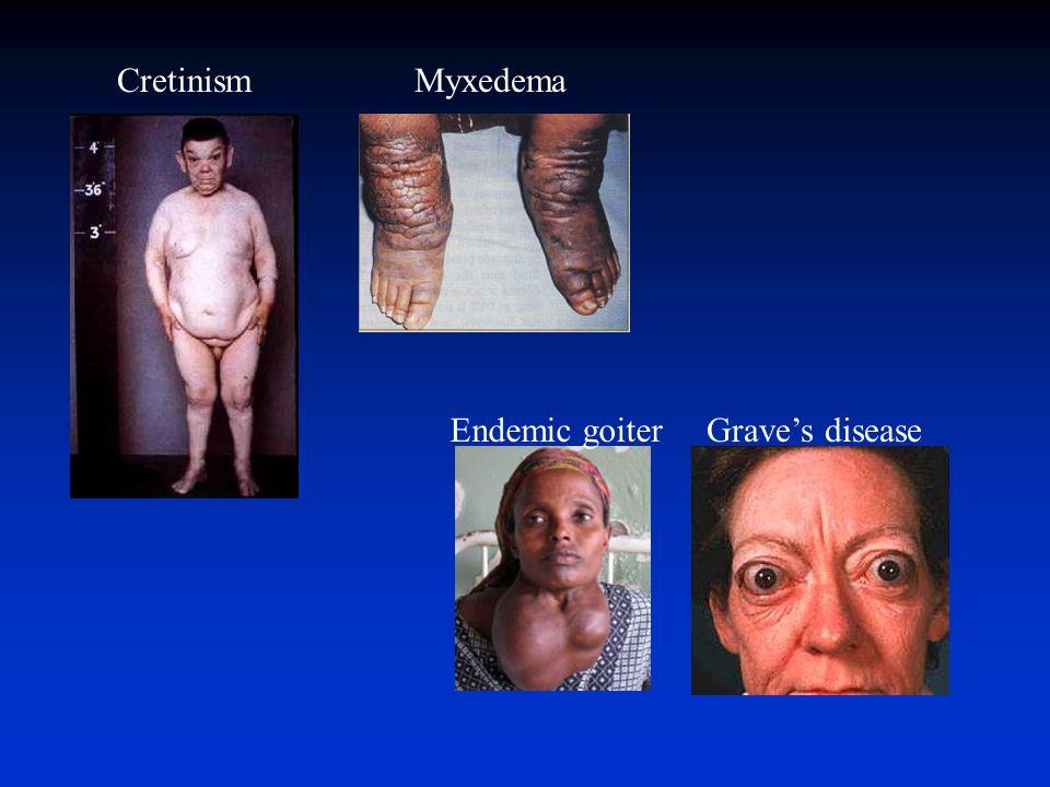 Cretinism Myxedema Endemic goiter Grave's disease