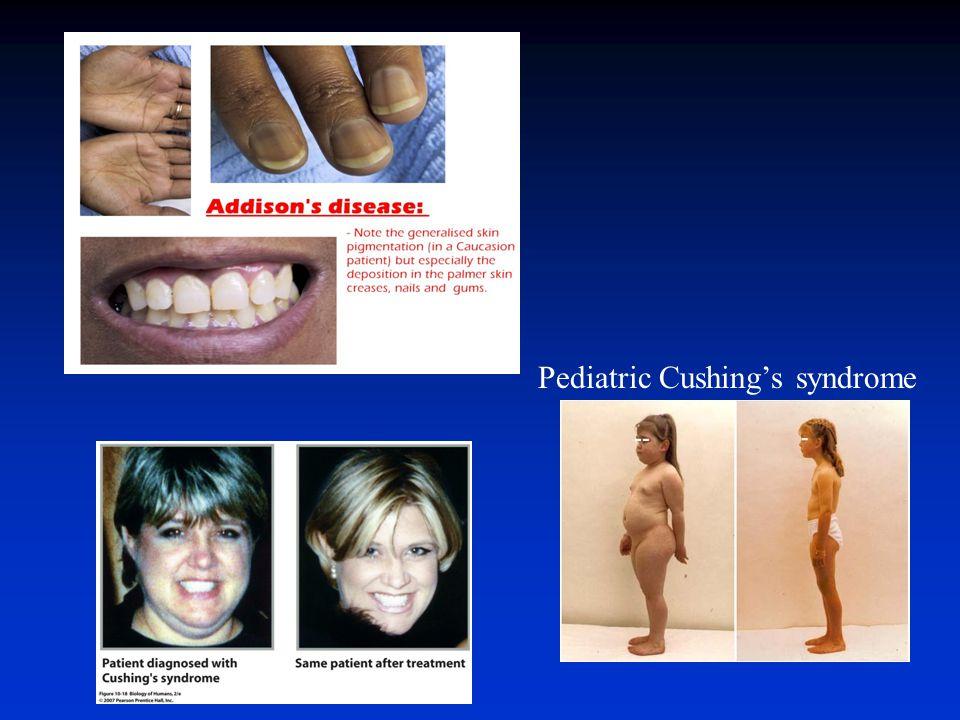 Pediatric Cushing's syndrome