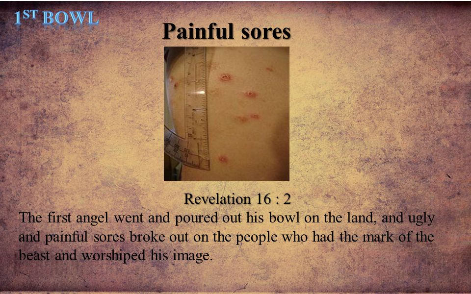 Painful sores 1st Bowl Revelation 16 : 2