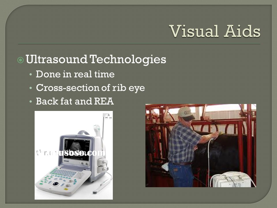 Visual Aids Ultrasound Technologies Done in real time