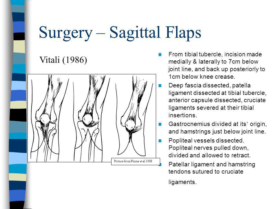 Surgery – Sagittal Flaps