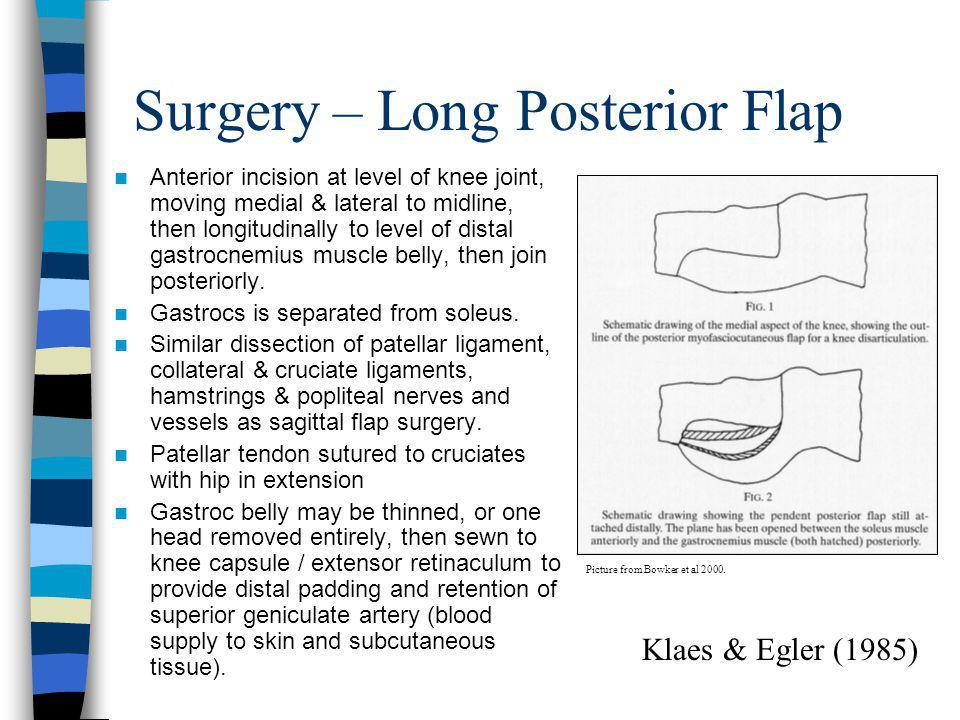 Surgery – Long Posterior Flap