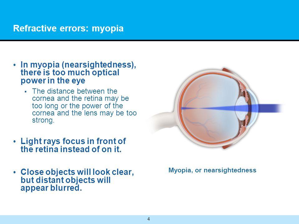 Refractive errors: myopia