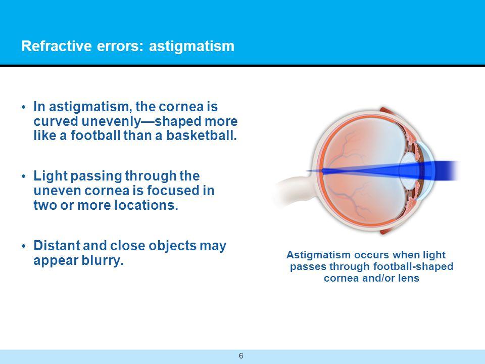 Refractive errors: astigmatism